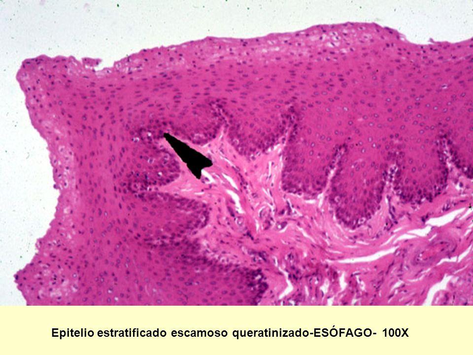 Epitelio estratificado escamoso queratinizado-ESÓFAGO- 100X