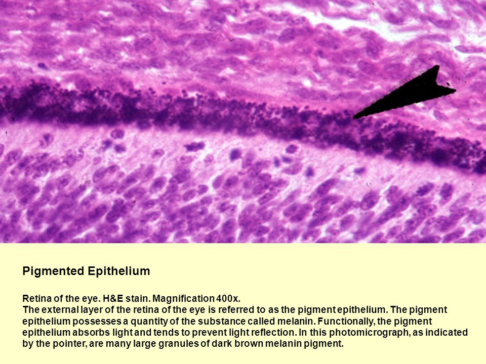 Pigmented Epithelium Retina of the eye. H&E stain. Magnification 400x. The external layer of the retina of the eye is referred to as the pigment epith