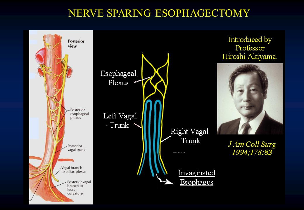 NERVE SPARING ESOPHAGECTOMY