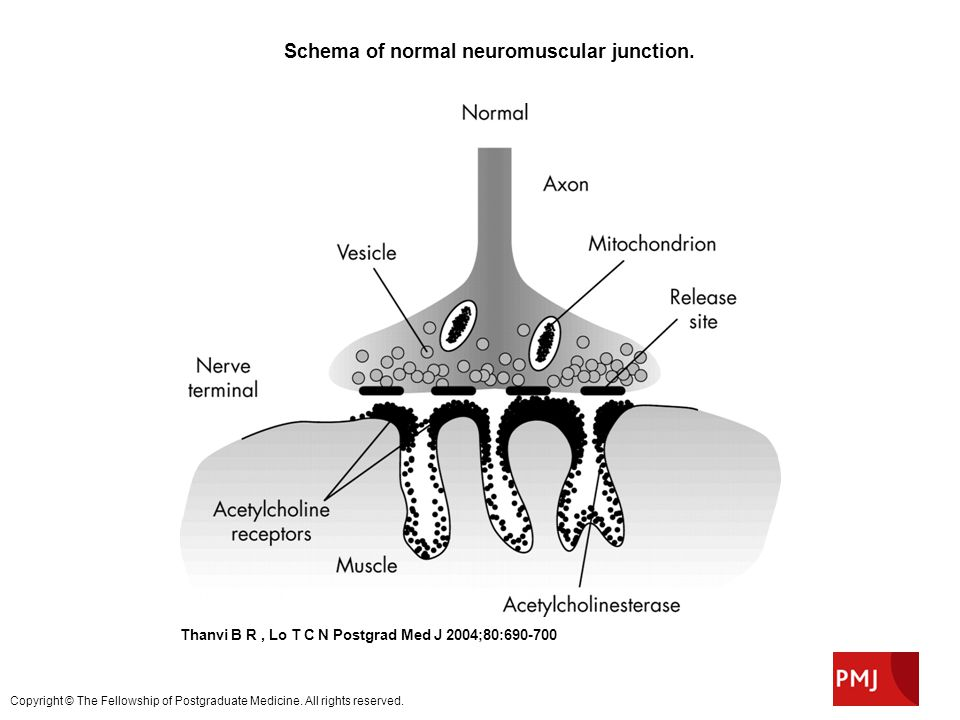 Schema of normal neuromuscular junction.
