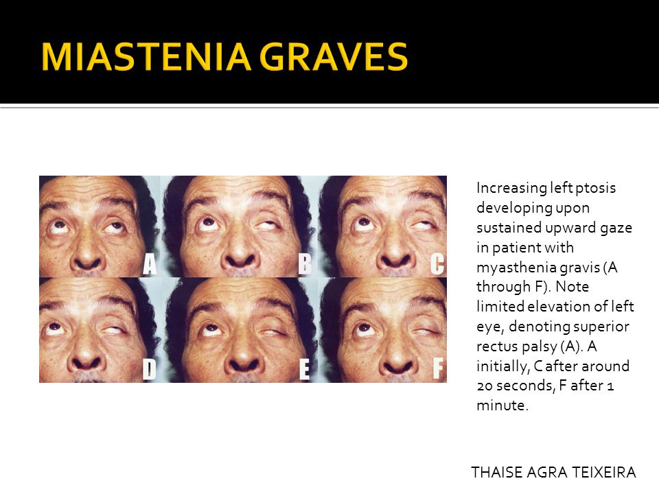 Increasing left ptosis developing upon sustained upward gaze in patient with myasthenia gravis (A through F).