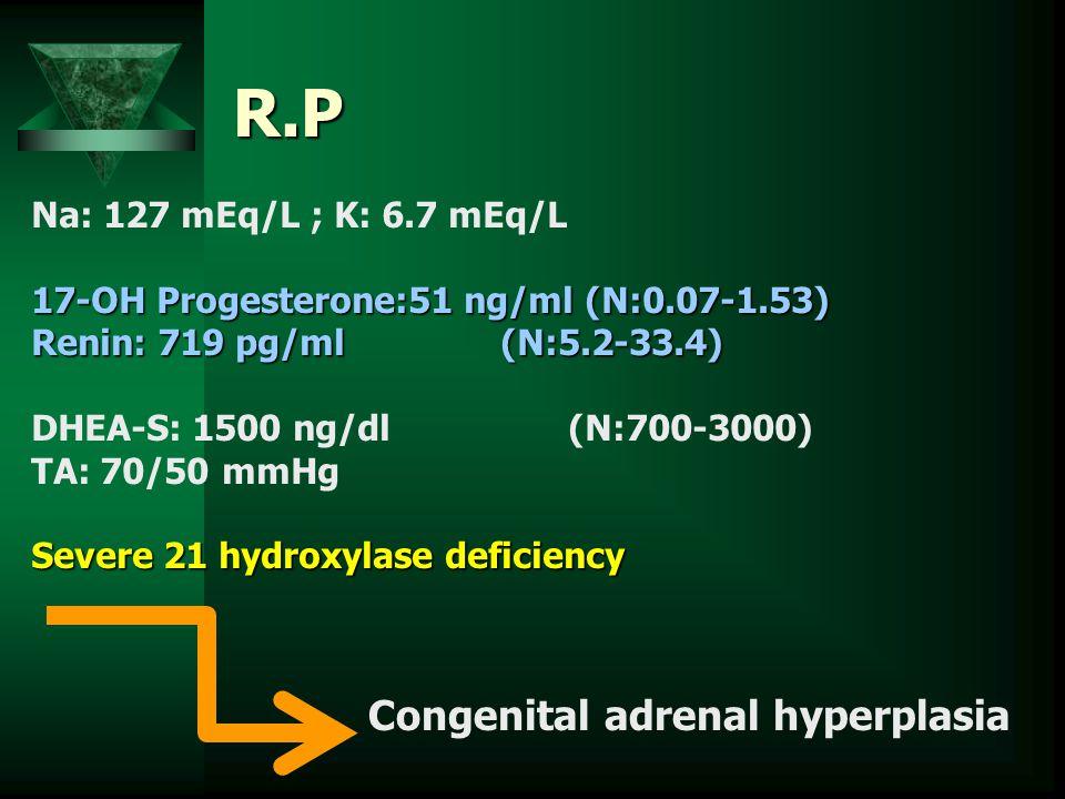 R.P Na: 127 mEq/L ; K: 6.7 mEq/L 17-OH Progesterone:51 ng/ml (N:0.07-1.53) Renin: 719 pg/ml (N:5.2-33.4) DHEA-S: 1500 ng/dl (N:700-3000) TA: 70/50 mmH