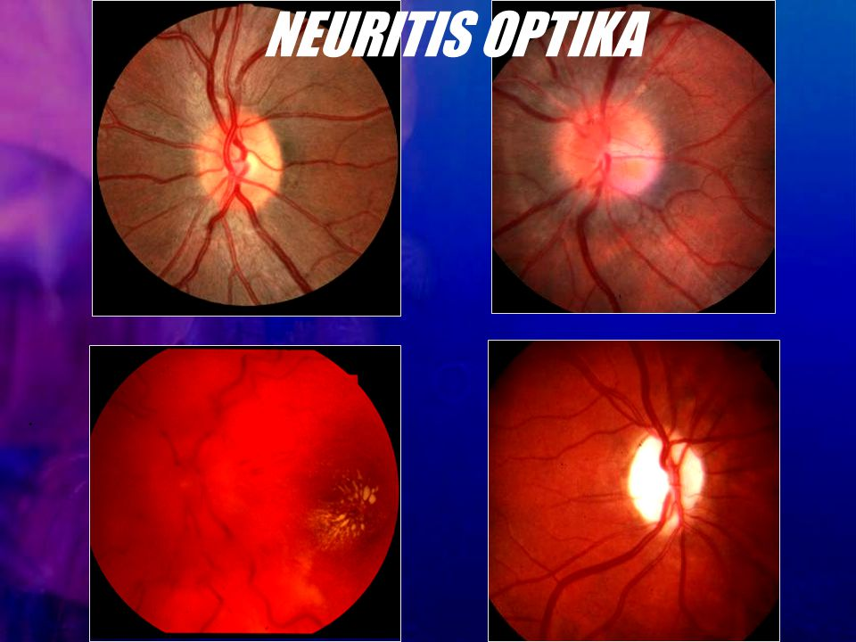NEURITIS OPTIKA