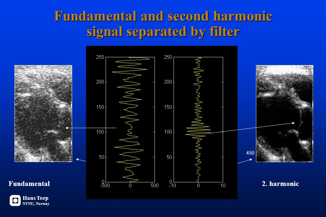 Fundamental and second harmonic signal separated by filter 450 Fundamental2.