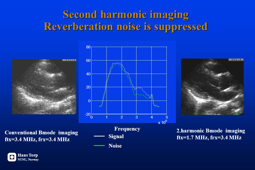Second harmonic imaging Reverberation noise is suppressed Conventional Bmode imaging ftx=3.4 MHz, frx=3.4 MHz 2.harmonic Bmode imaging ftx=1.7 MHz, frx=3.4 MHz 012345 x 10 6 -20 0 20 40 60 80 Frequency Signal Noise Hans Torp NTNU, Norway