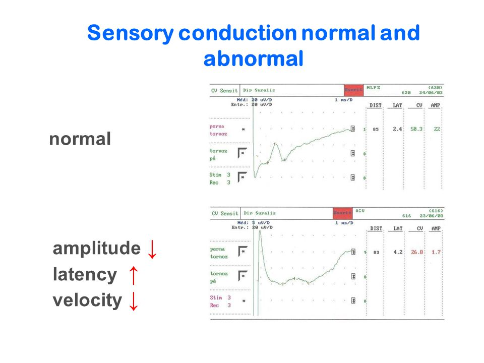 Sensory conduction normal and abnormal normal amplitude ↓ latency ↑ velocity ↓