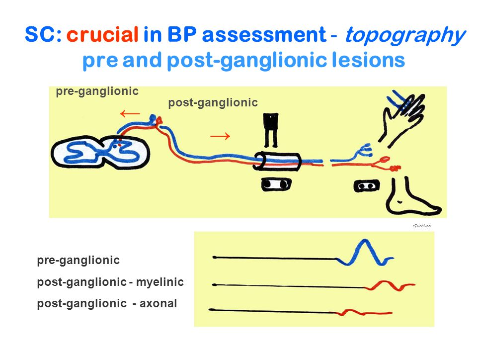 SC: crucial in BP assessment - topography pre and post-ganglionic lesions pre-ganglionic post-ganglionic - myelinic post-ganglionic - axonal Garbino p