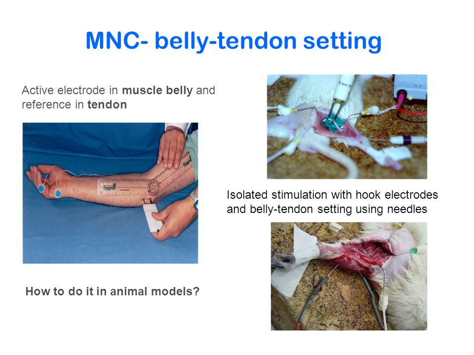 MNC- belly-tendon setting Active electrode in muscle belly and reference in tendon How to do it in animal models.