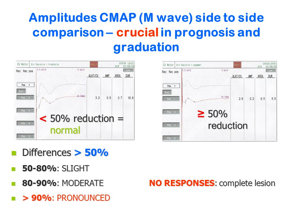 Amplitudes CMAP (M wave) side to side comparison – crucial in prognosis and graduation < 50% reduction = normal ≥ 50% reduction n Differences > 50% n 50-80%: SLIGHT n 80-90%: MODERATE NO RESPONSES: complete lesion n > 90%: PRONOUNCED