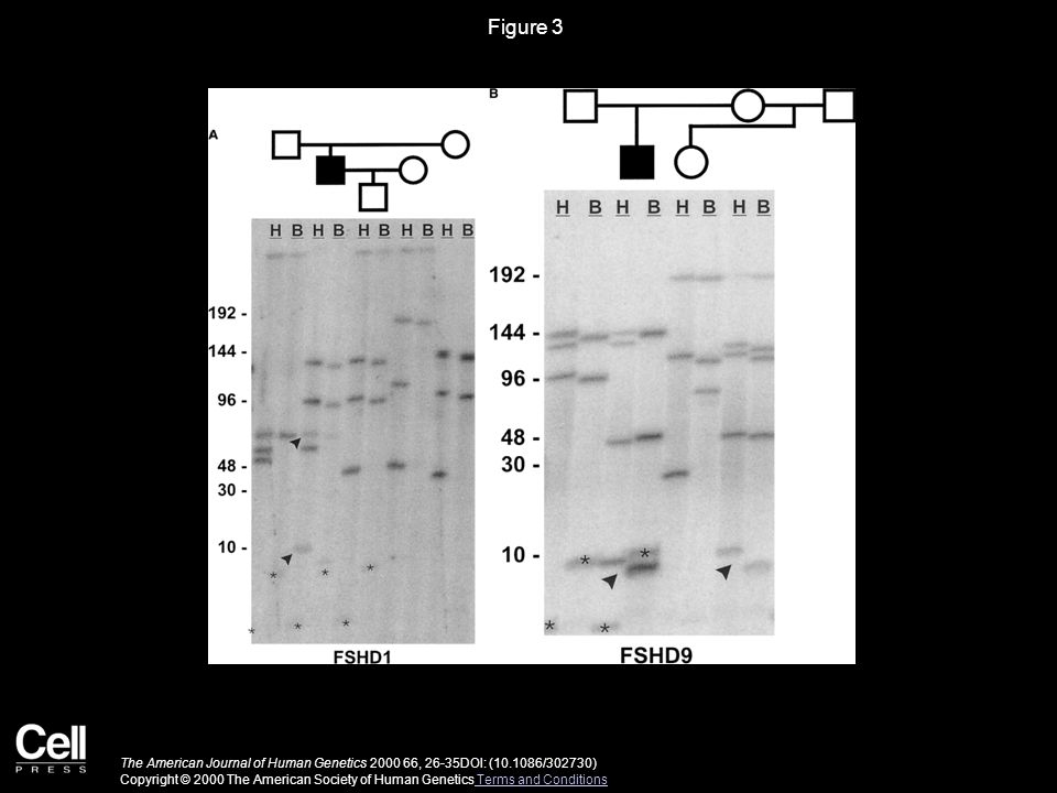 Figure 3 The American Journal of Human Genetics 2000 66, 26-35DOI: (10.1086/302730) Copyright © 2000 The American Society of Human Genetics Terms and Conditions Terms and Conditions