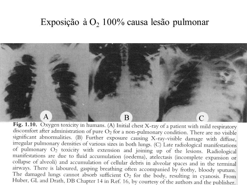 Exposição à O 2 100% causa lesão pulmonar