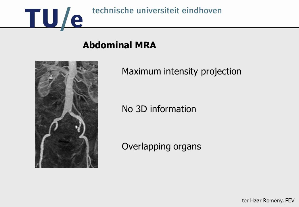 ter Haar Romeny, FEV Abdominal MRA Maximum intensity projection No 3D information Overlapping organs
