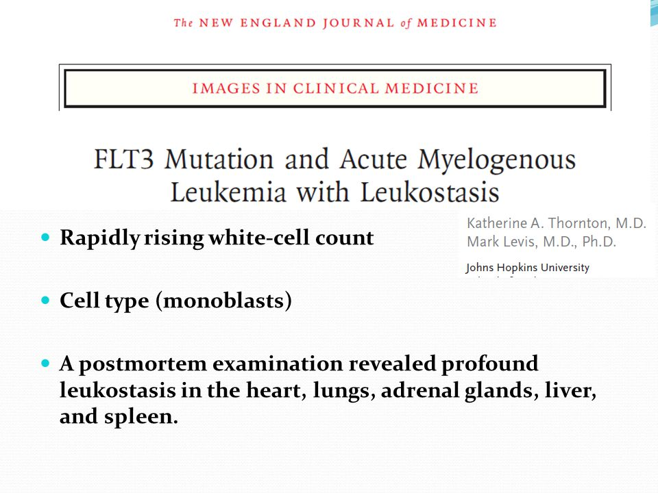 Rapidly rising white-cell count Cell type (monoblasts) A postmortem examination revealed profound leukostasis in the heart, lungs, adrenal glands, liver, and spleen.