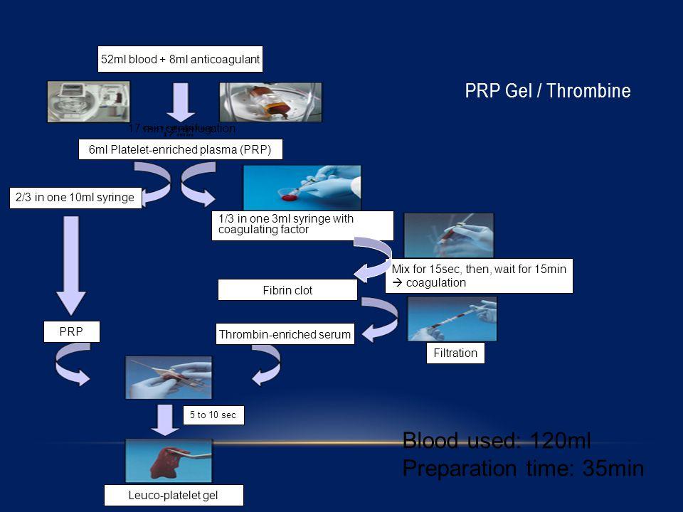 52ml blood + 8ml anticoagulant 6ml Platelet-enriched plasma (PRP) 2/3 in one 10ml syringe 1/3 in one 3ml syringe with coagulating factor Mix for 15sec, then, wait for 15min  coagulation Filtration Fibrin clot Thrombin-enriched serum 5 to 10 sec Leuco-platelet gel PRP Gel / Thrombine Blood used: 120ml Preparation time: 35min 17 min centrifugation PRP