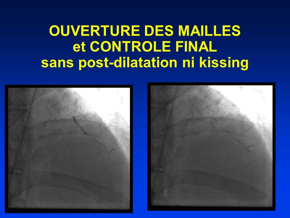 OUVERTURE DES MAILLES et CONTROLE FINAL sans post-dilatation ni kissing