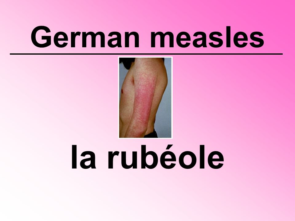 German measles la rubéole