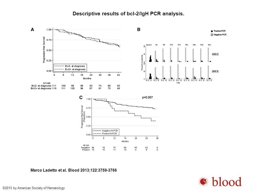 Descriptive results of bcl-2/IgH PCR analysis. Marco Ladetto et al.