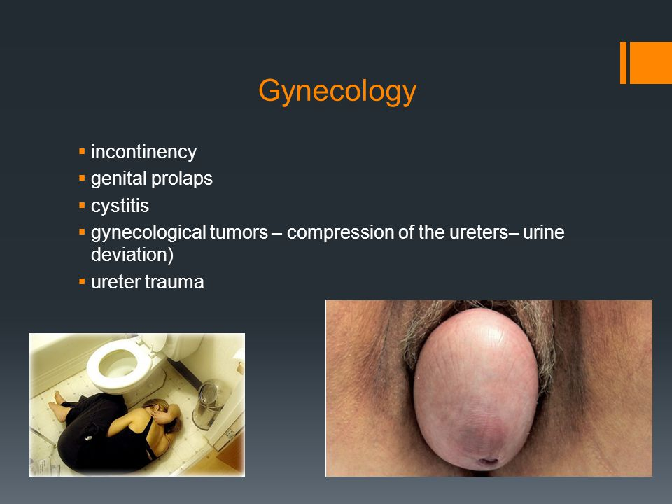 Gynecology  incontinency  genital prolaps  cystitis  gynecological tumors – compression of the ureters– urine deviation)  ureter trauma