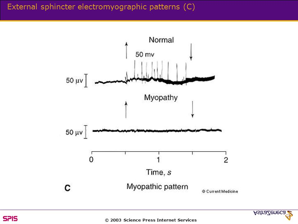 © 2003 Science Press Internet Services External sphincter electromyographic patterns (C)