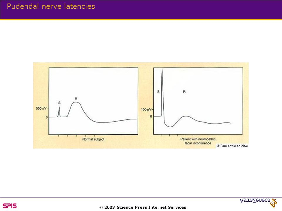© 2003 Science Press Internet Services Pudendal nerve latencies