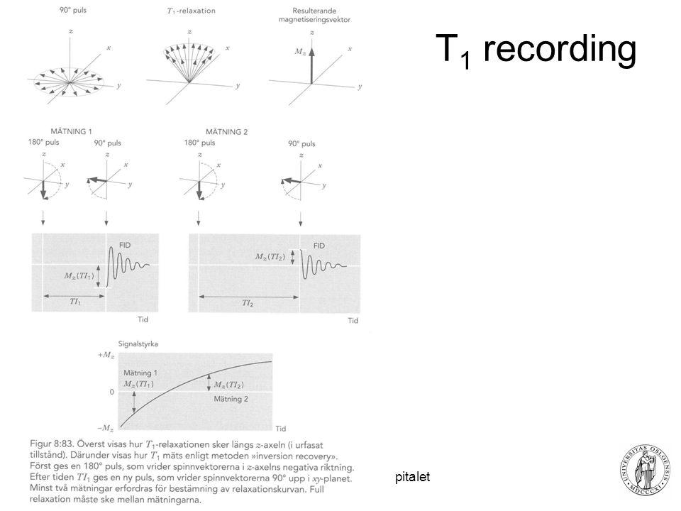 Fysisk institutt - Rikshospitalet 25 T 1 recording