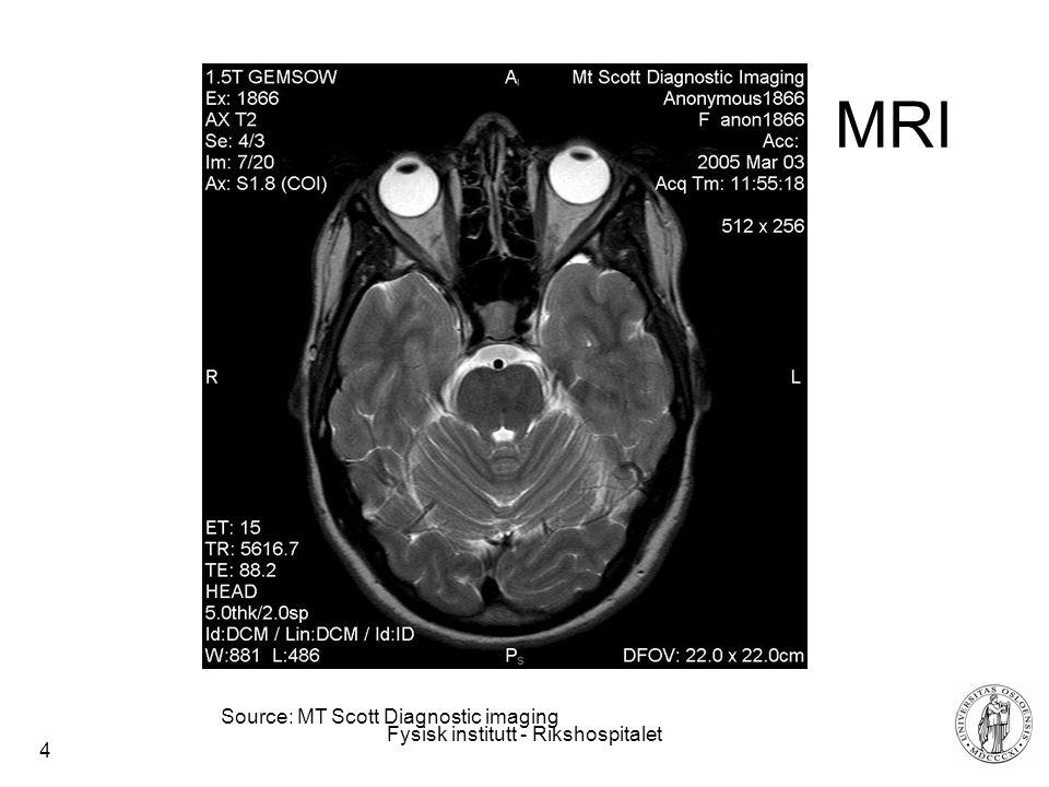 Fysisk institutt - Rikshospitalet 4 MRI Source: MT Scott Diagnostic imaging