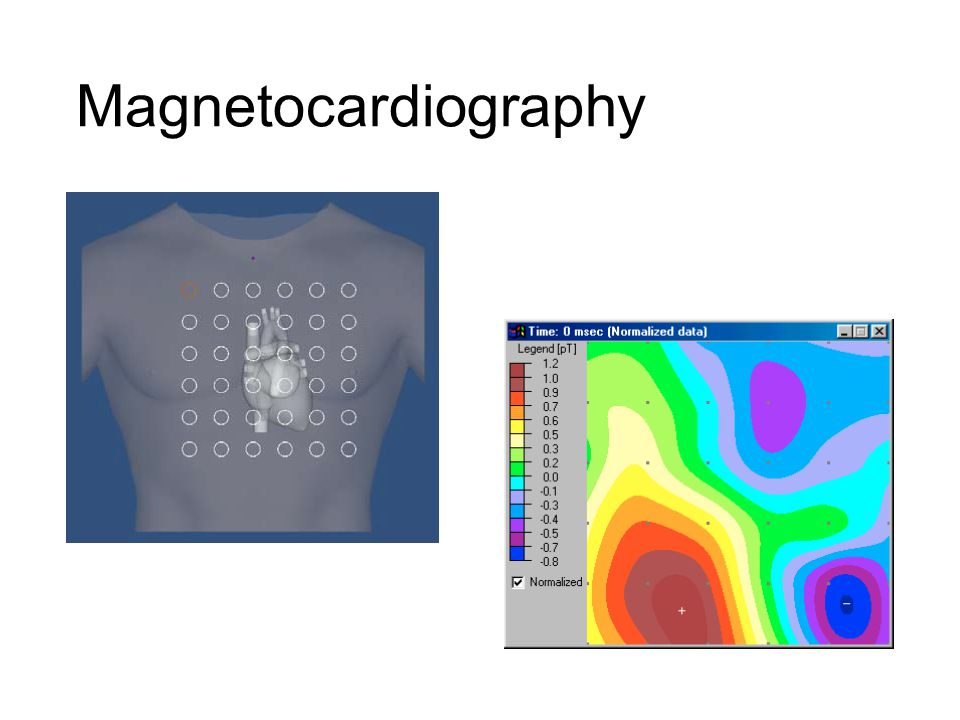 Magnetocardiography