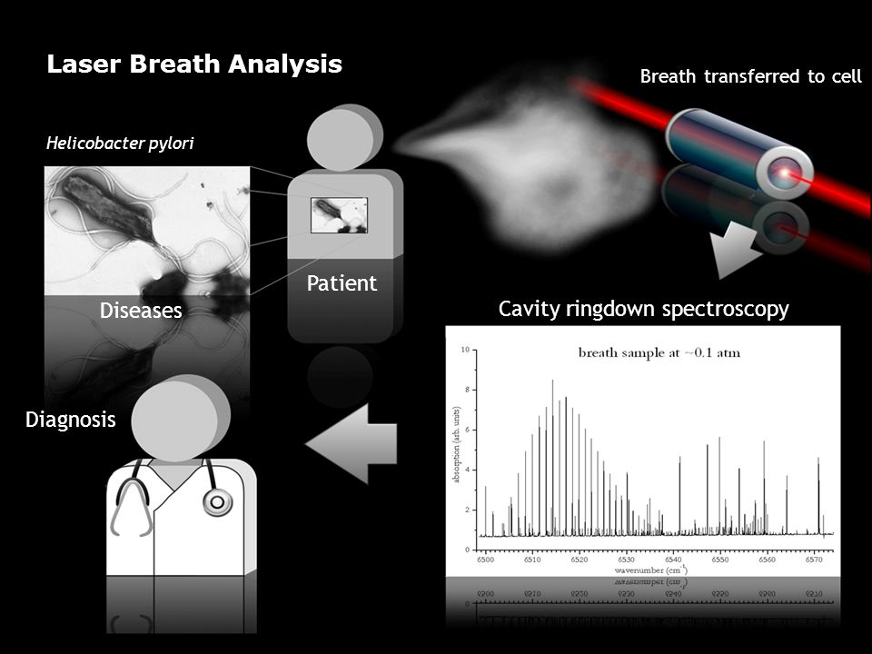 Diagnosis Cavity ringdown spectroscopy Breath transferred to cell Patient Diseases Helicobacter pylori Laser Breath Analysis