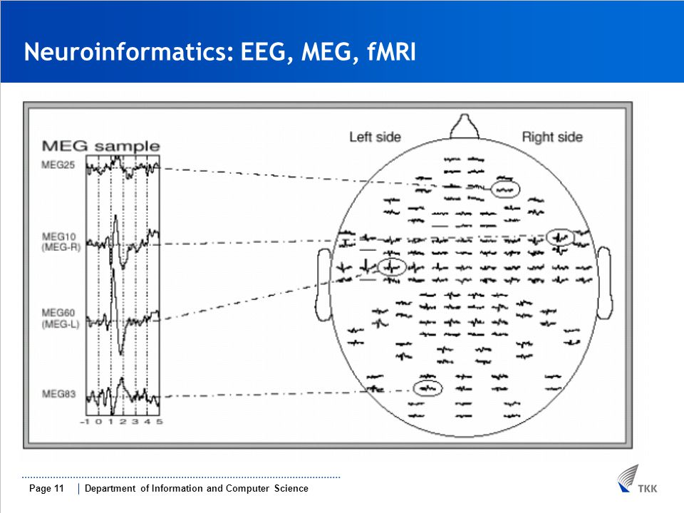 Department of Information and Computer SciencePage 11 Neuroinformatics: EEG, MEG, fMRI