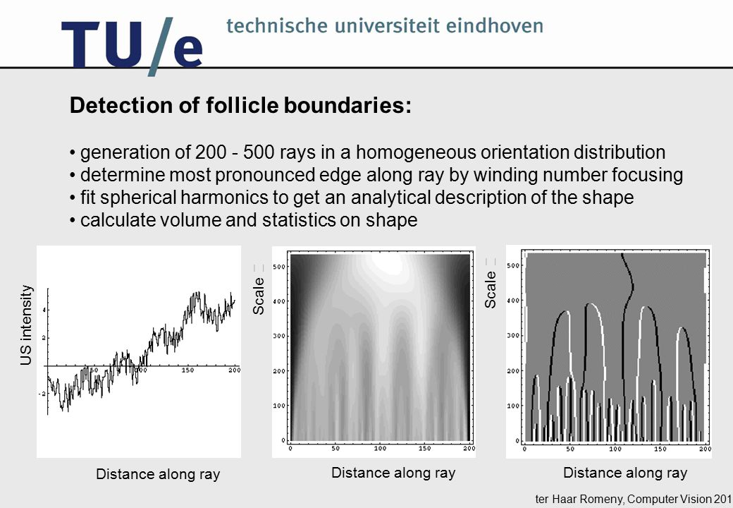 ter Haar Romeny, Computer Vision 2014 Detection of follicle boundaries: generation of 200 - 500 rays in a homogeneous orientation distribution determine most pronounced edge along ray by winding number focusing fit spherical harmonics to get an analytical description of the shape calculate volume and statistics on shape Distance along ray Scale  US intensity Scale  Distance along ray