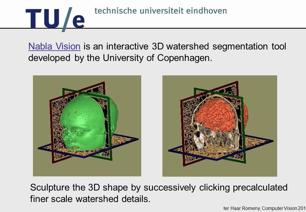 ter Haar Romeny, Computer Vision 2014 Nabla VisionNabla Vision is an interactive 3D watershed segmentation tool developed by the University of Copenhagen.
