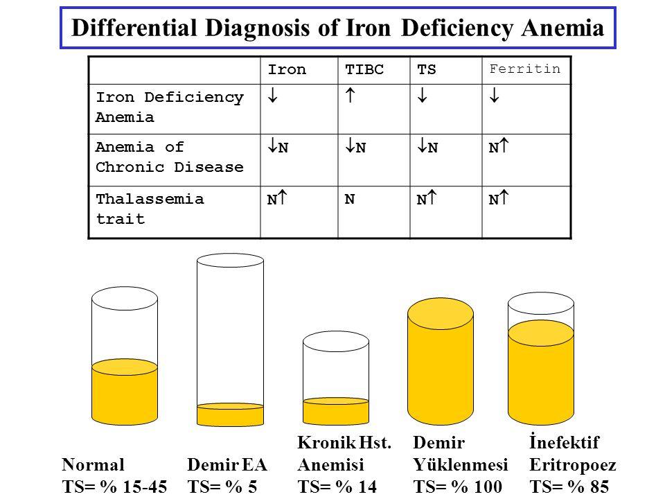 IronTIBCTS Ferritin Iron Deficiency Anemia  Anemia of Chronic Disease NN NN NNNN Thalassemia trait NN N NN NN Normal TS= % 15-45 Demir EA TS= % 5 Kronik Hst.