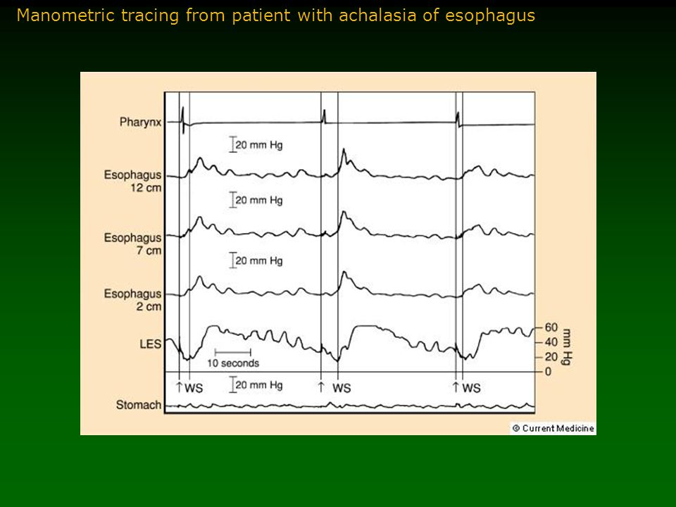 Manometric tracing from patient with achalasia of esophagus