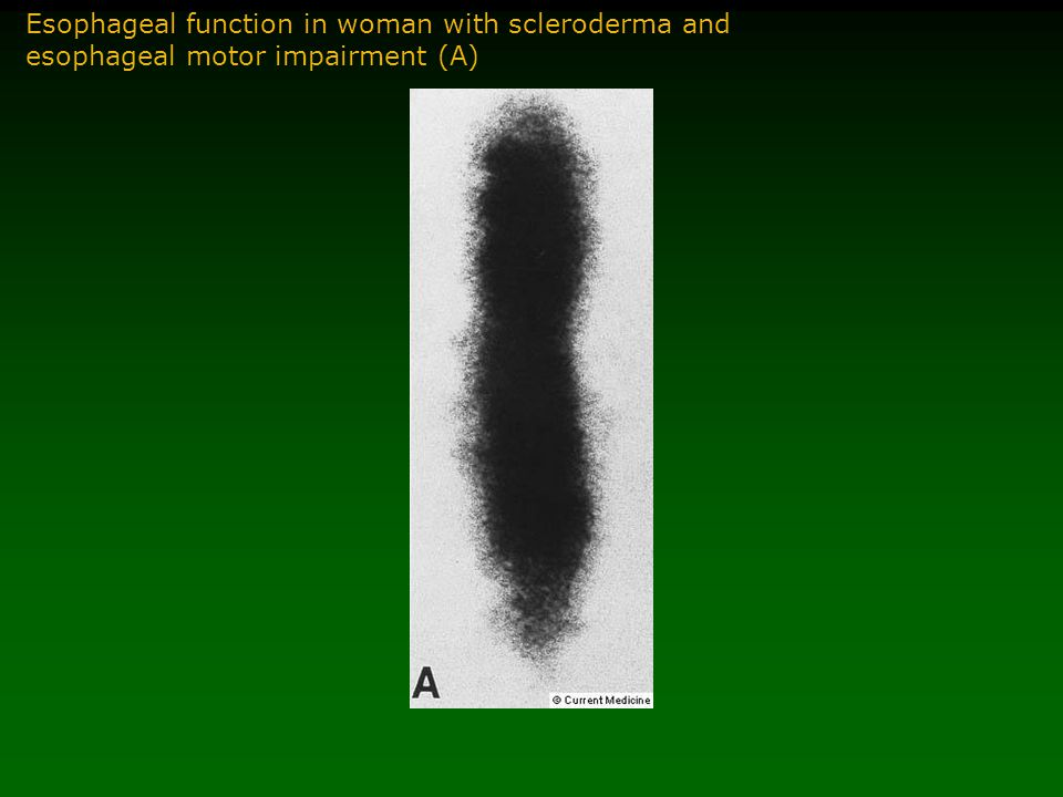 Esophageal function in woman with scleroderma and esophageal motor impairment (A)