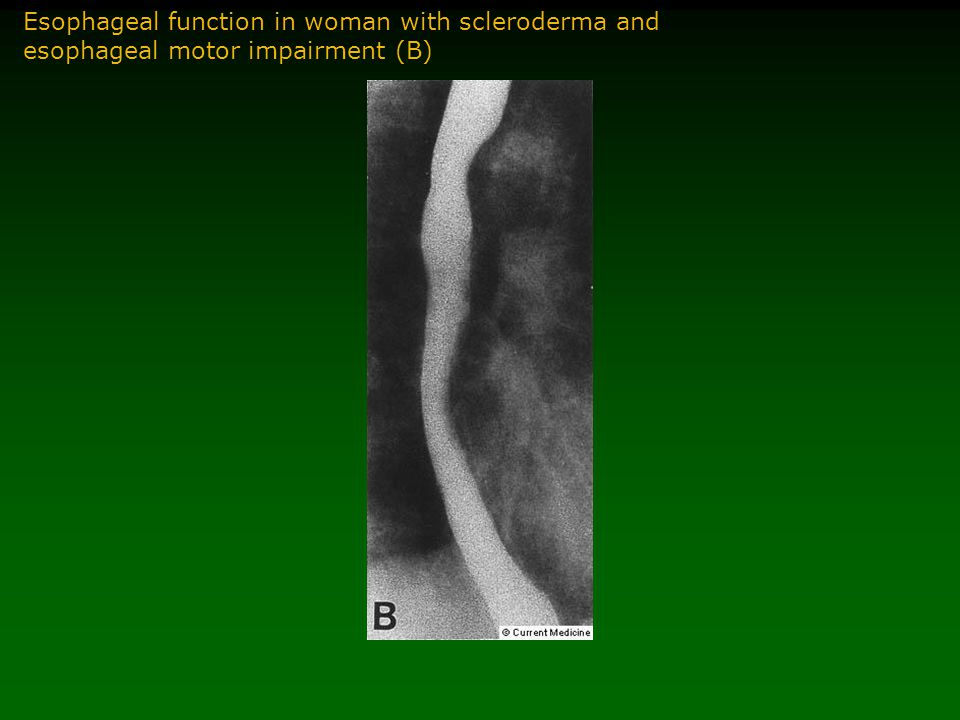 Esophageal function in woman with scleroderma and esophageal motor impairment (B)