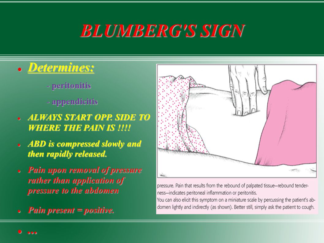 BLUMBERG'S SIGN Determines: Determines: - peritonitis - peritonitis - appendicitis - appendicitis ALWAYS START OPP. SIDE TO WHERE THE PAIN IS !!!! ALW