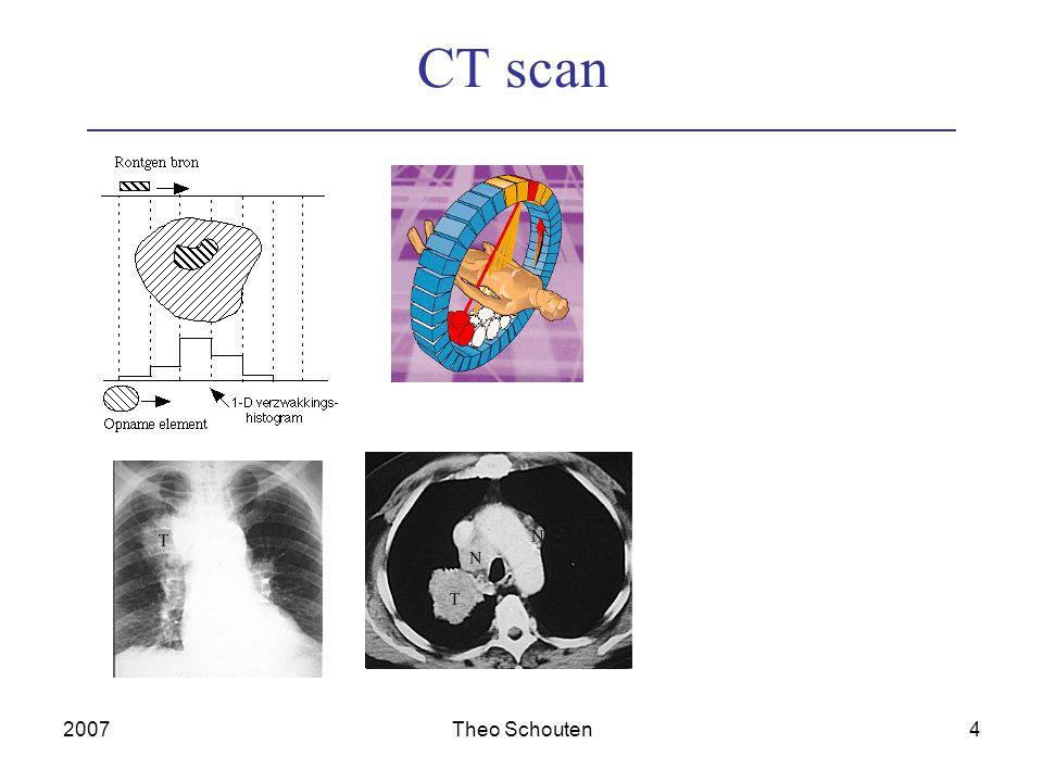 2007Theo Schouten4 CT scan