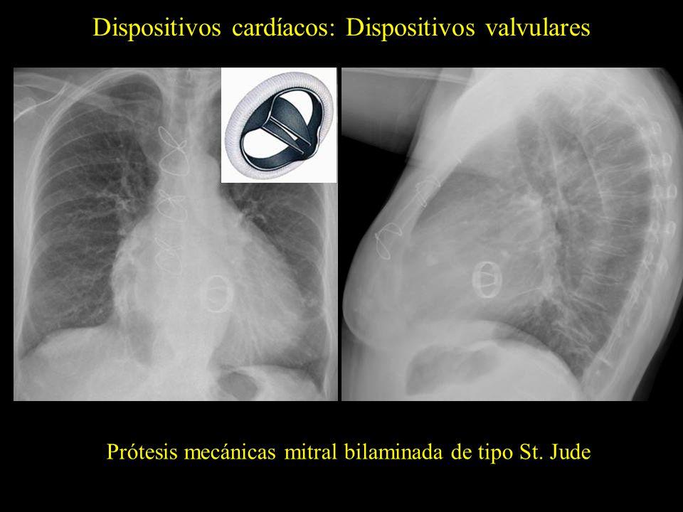 Dispositivos cardíacos: Dispositivos valvulares Prótesis mecánicas mitral bilaminada de tipo St. Jude