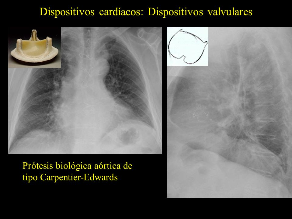 Dispositivos cardíacos: Dispositivos valvulares Prótesis biológica aórtica de tipo Carpentier-Edwards