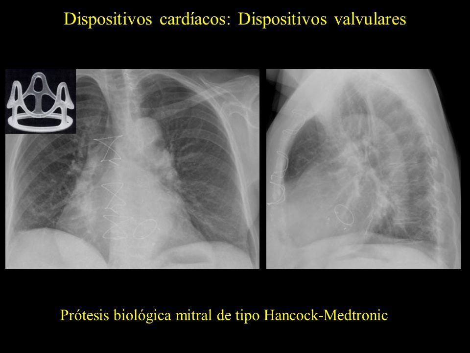 Dispositivos cardíacos: Dispositivos valvulares Prótesis biológica aórtica de tipo Hancock-Medtronic