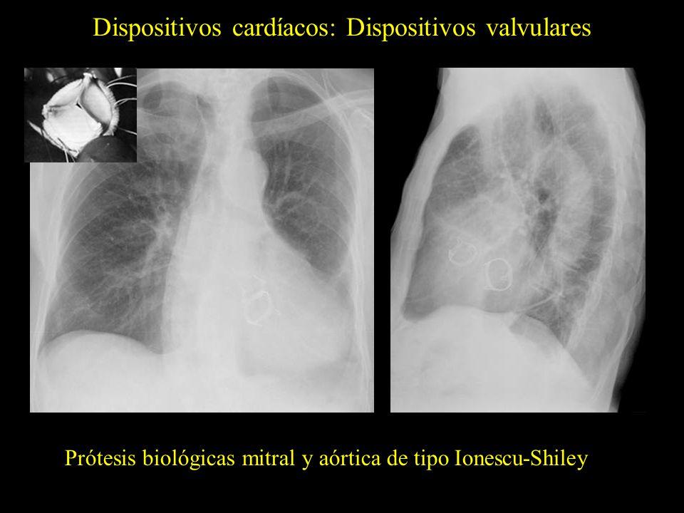 Dispositivos cardíacos: Dispositivos valvulares Prótesis biológicas mitral y aórtica de tipo Ionescu-Shiley