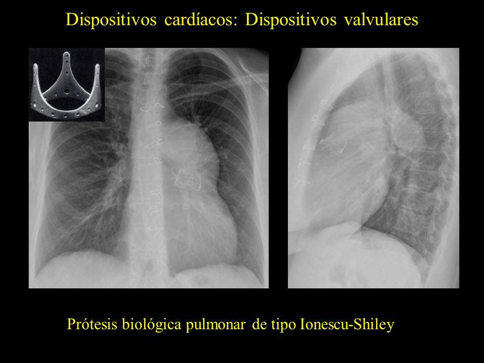 Dispositivos cardíacos: Dispositivos valvulares Prótesis mecánica pulmonar de bola tipo Starr Edwards Prótesis mecánicas mitral y aórtica de bola tipo Starr Edwards