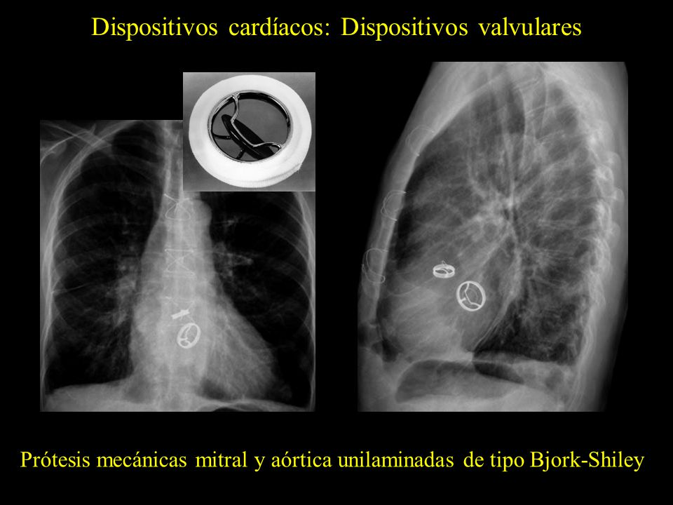 Dispositivos cardíacos: Dispositivos valvulares Prótesis mecánicas mitral y aórtica unilaminadas de tipo Bjork-Shiley