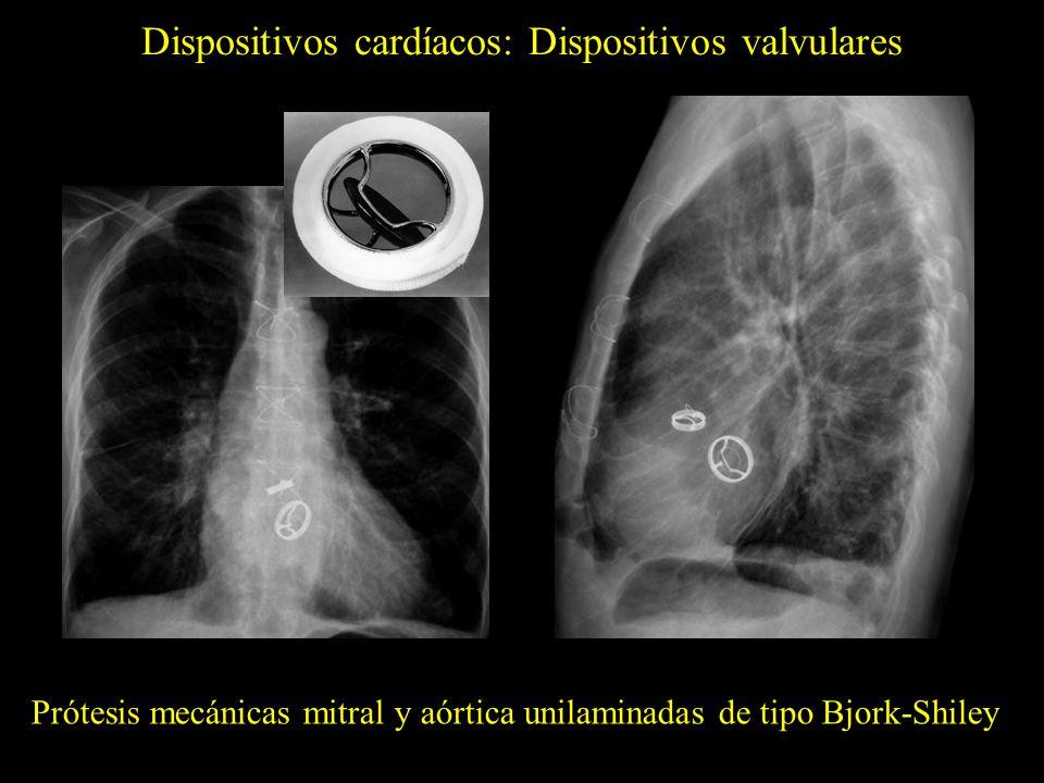 Dispositivos cardíacos: Dispositivos valvulares Prótesis mecánica mitral unilaminada de tipo Medtronic-Hall