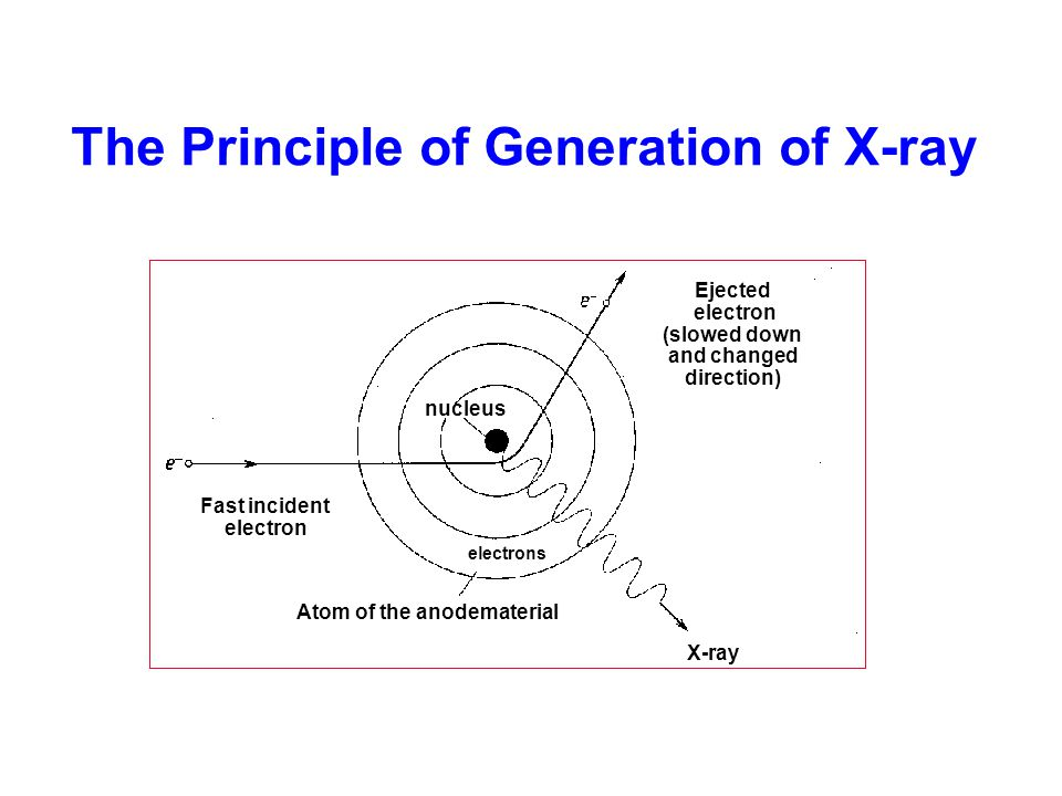 The Principle of Generation of X-ray X-ray Fast incident electron nucleus Atom of the anodematerial electrons Ejected electron (slowed down and change