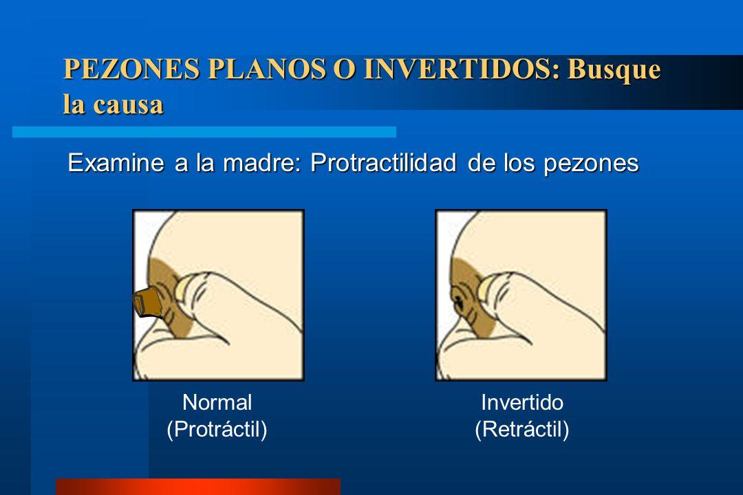 PEZONES PLANOS O INVERTIDOS: Busque la causa Examine a la madre: Protractilidad de los pezones Normal (Protráctil) Invertido (Retráctil)