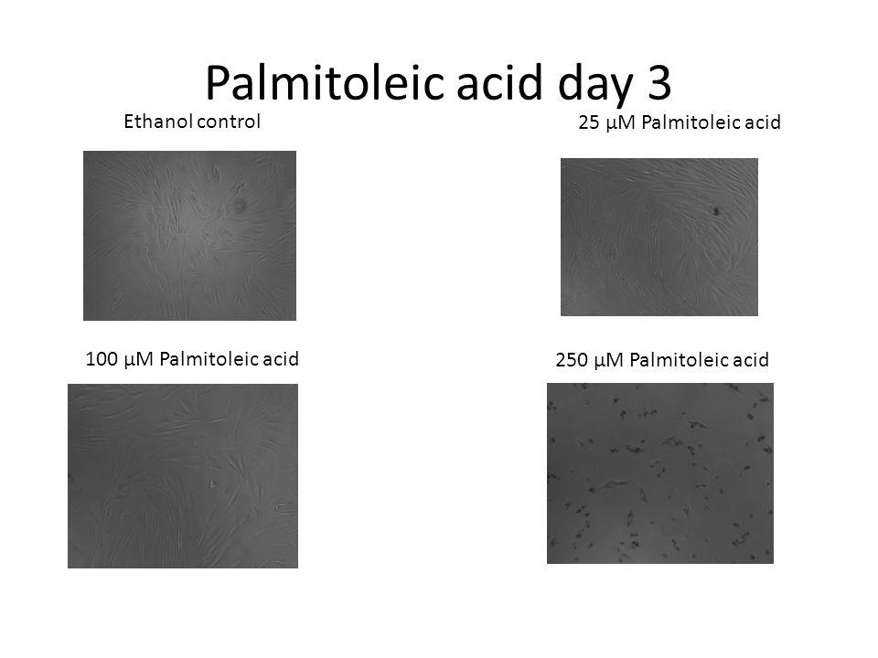 Palmitoleic acid day 3 Ethanol control 25 μM Palmitoleic acid 100 μM Palmitoleic acid 250 μM Palmitoleic acid