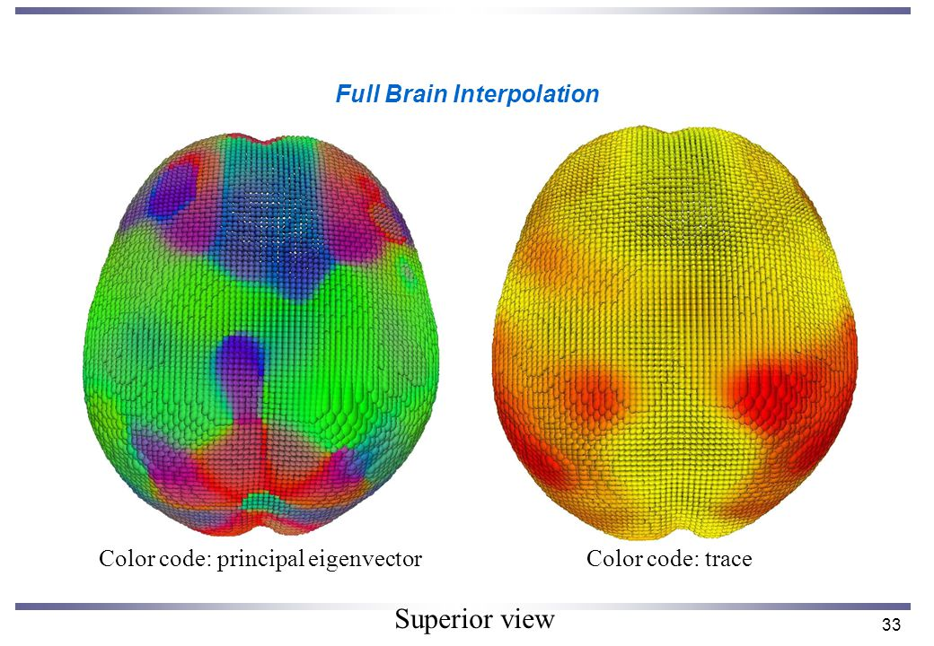 33 Full Brain Interpolation Color code: principal eigenvectorColor code: trace Superior view