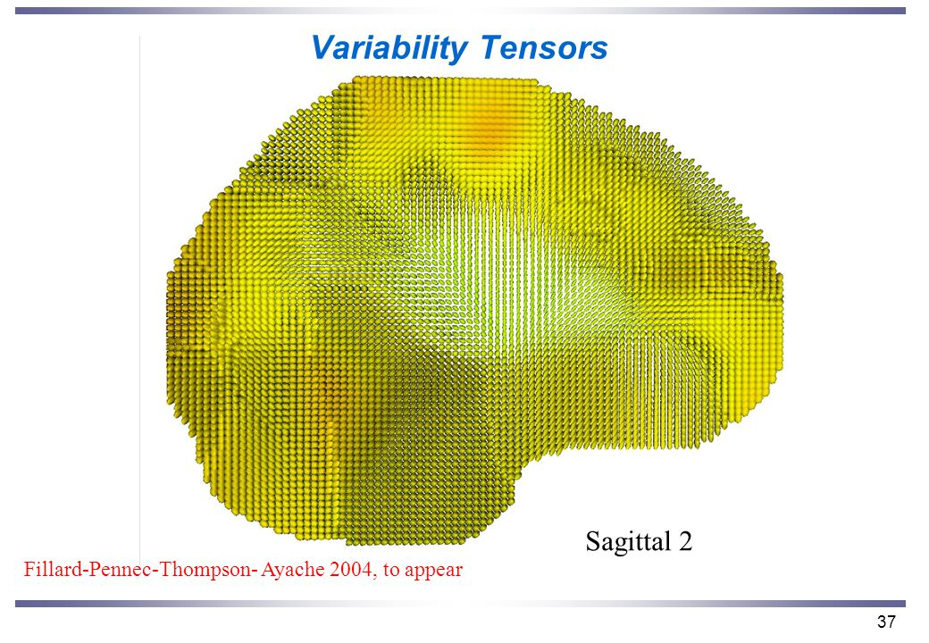 37 Variability Tensors Sagittal 2 Fillard-Pennec-Thompson- Ayache 2004, to appear