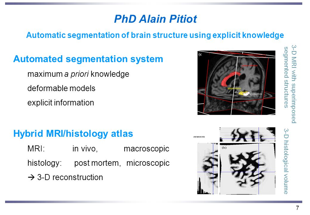 7 PhD Alain Pitiot Automatic segmentation of brain structure using explicit knowledge Automated segmentation system maximum a priori knowledge deformable models explicit information Hybrid MRI/histology atlas MRI: in vivo, macroscopic histology: post mortem, microscopic  3-D reconstruction 3-D MRI with superimposed segmented structures 3-D histological volume